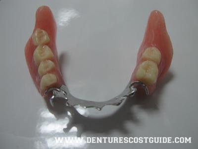 Denture Guide